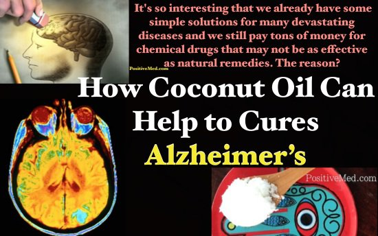 coconut-oil-can-cure-alzheimer-