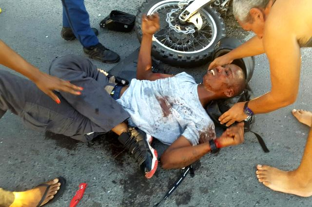 The victim from the bike accident in Simpsonbay is seen on the ground. PHOTO / Facebook